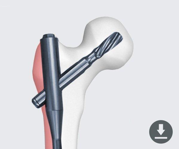 Proximal-Femur-Nail