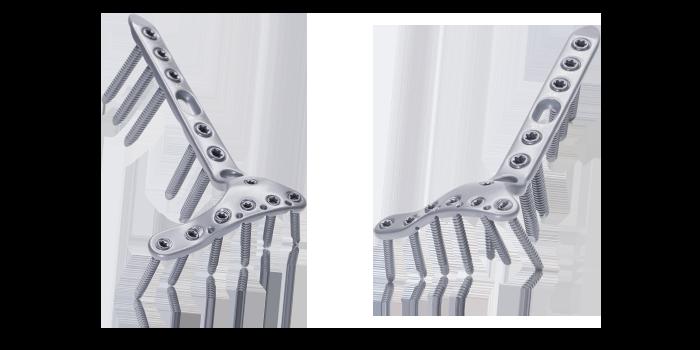 Proximal Tibia Plate